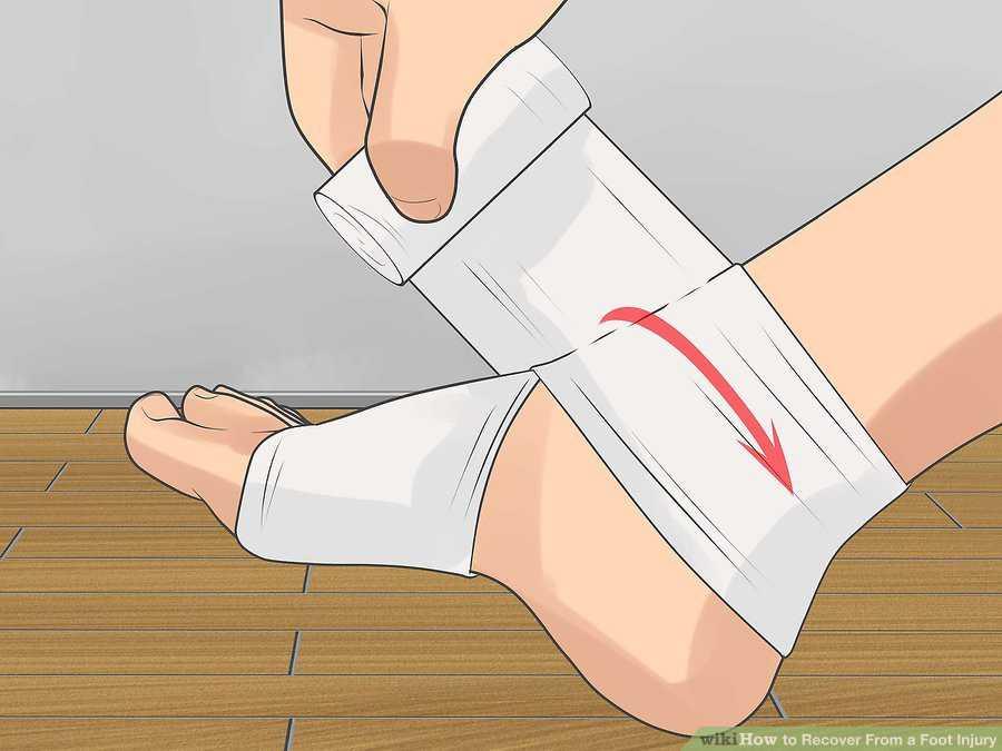 روش های بازیابی توان بعد از مصدومیت پا 2