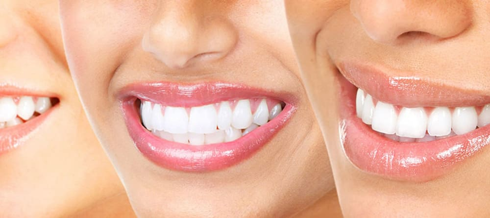 آنچه باید در رابطه با سلامت دهان و دندان بدانید 3
